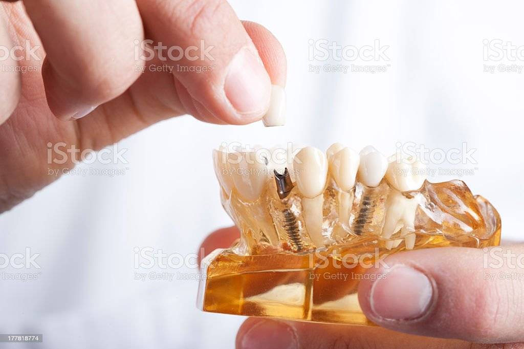 doctor showing dental implant stock photo