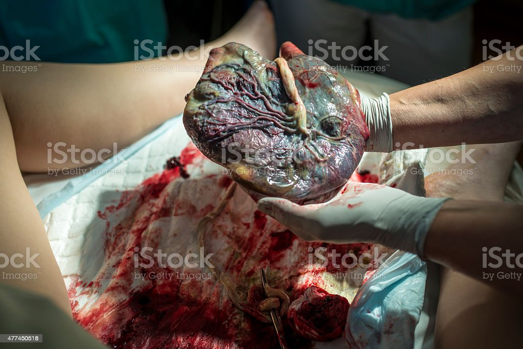 Doctor Showing Placenta stock photo