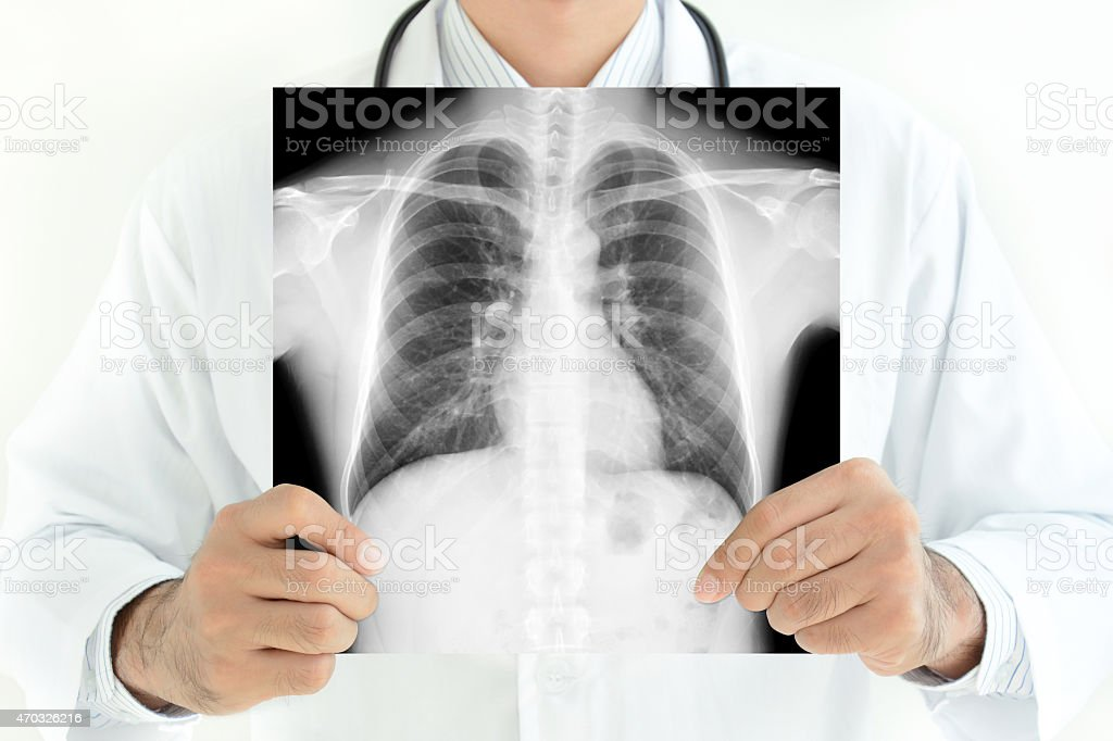 Doctor showing x-ray image of normal man chest stock photo
