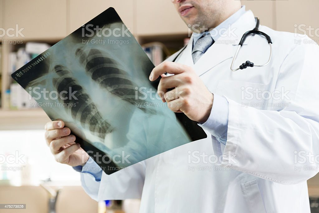 Doctor showing x-ray  of lungs. hospital. medical check. stock photo