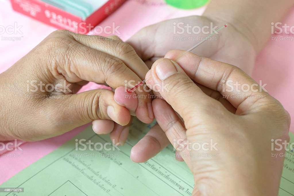 Doctor testing for blood group stock photo