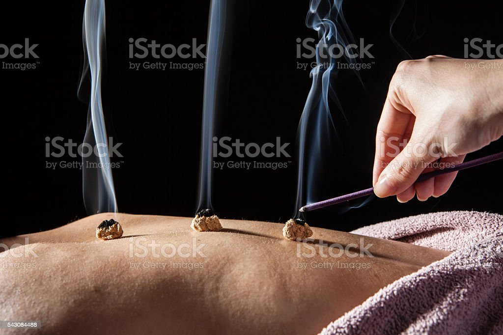 Doctor that ignited the coals of the patient's back stock photo