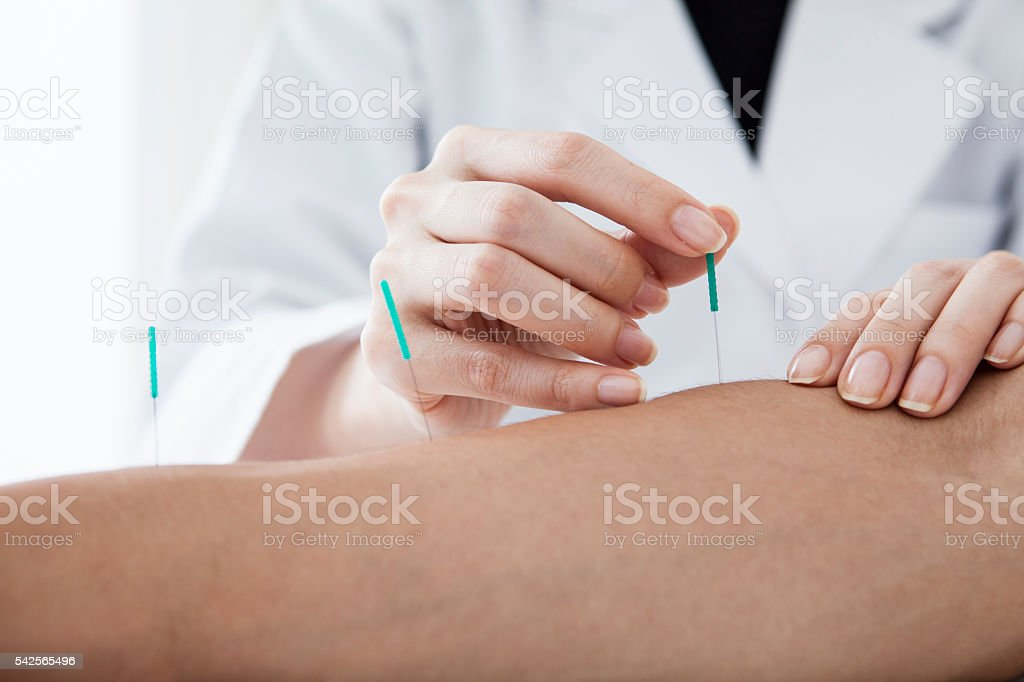 Doctor that the acupuncture treatment to the patient's arm stock photo