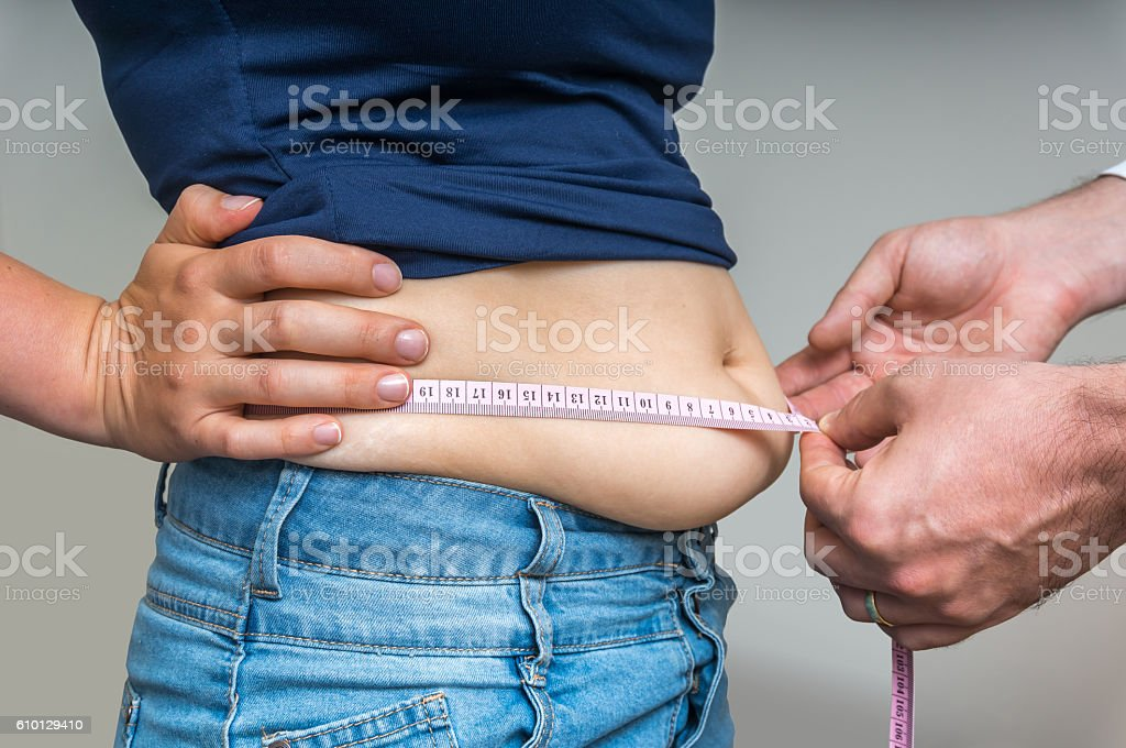 Doctor treats a woman with overweight stock photo