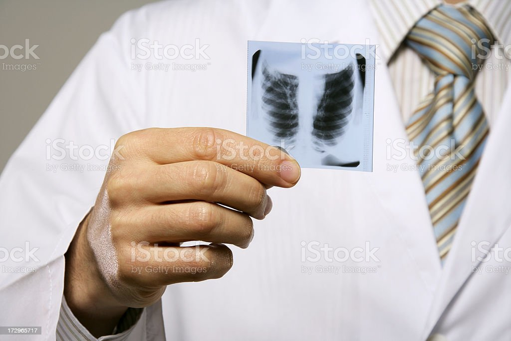 Doctor with X-Ray photo royalty-free stock photo