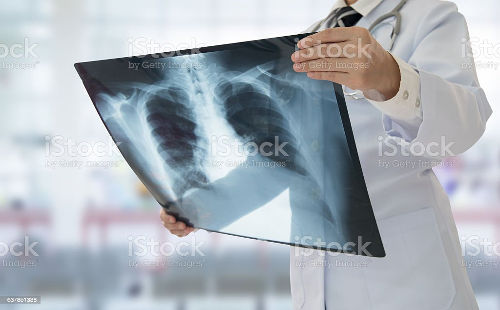 doctor x-ray stock photo