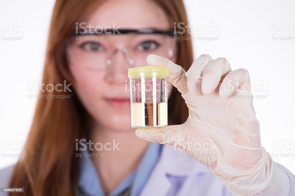 doctor's hand holding a bottle of urine sample stock photo