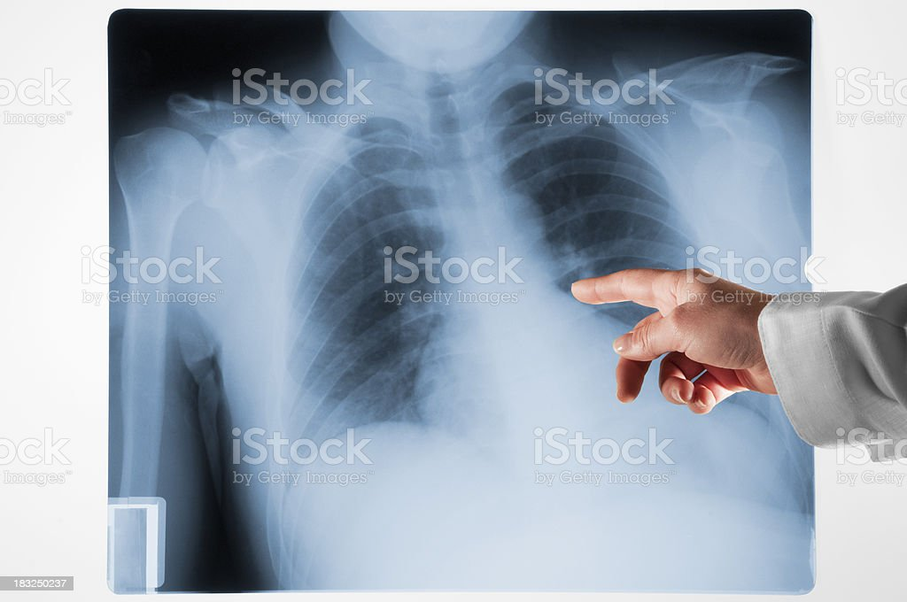 Doctors hand pointing at Xray on lightbox royalty-free stock photo