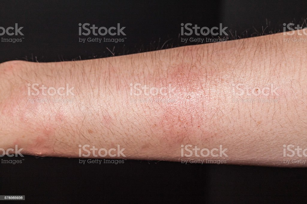 Dog bite wound and scar in close up stock photo