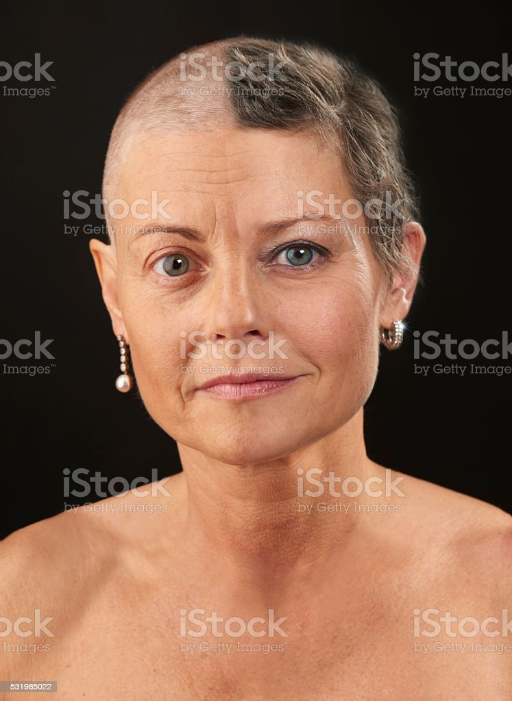 Double portrait Woman in chemotherapy and 8 month later stock photo