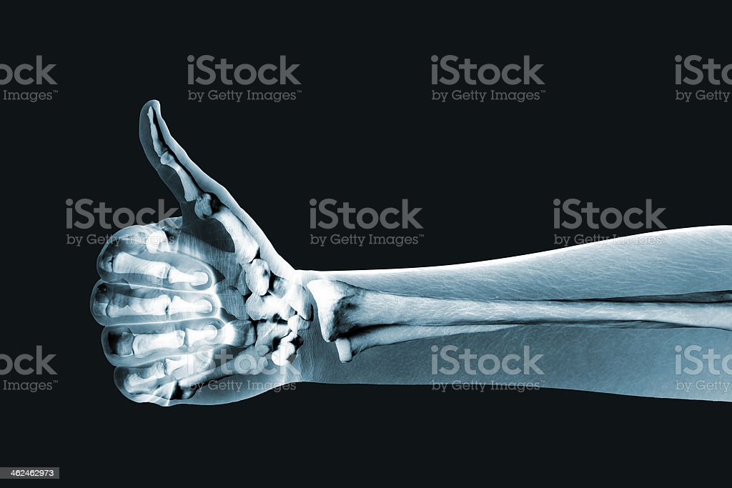 dramatized x ray of a hand thumbs up stock photo
