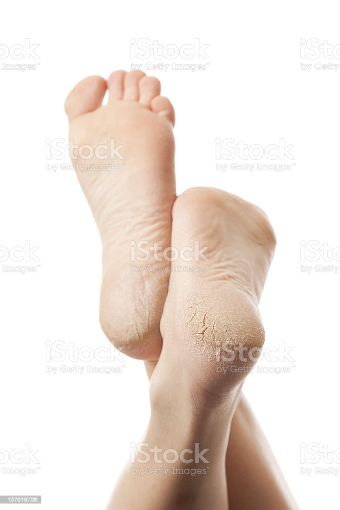 Dry and cracked soles of feet on white background stock photo