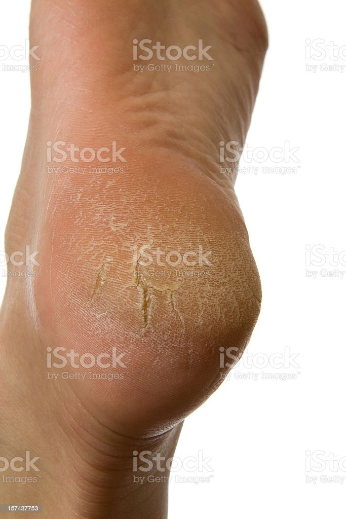Dry and cracked woman's heel on white background royalty-free stock photo