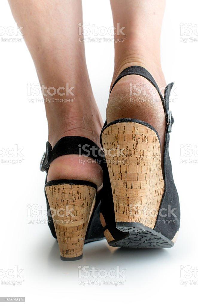 Dry Callus heels stock photo