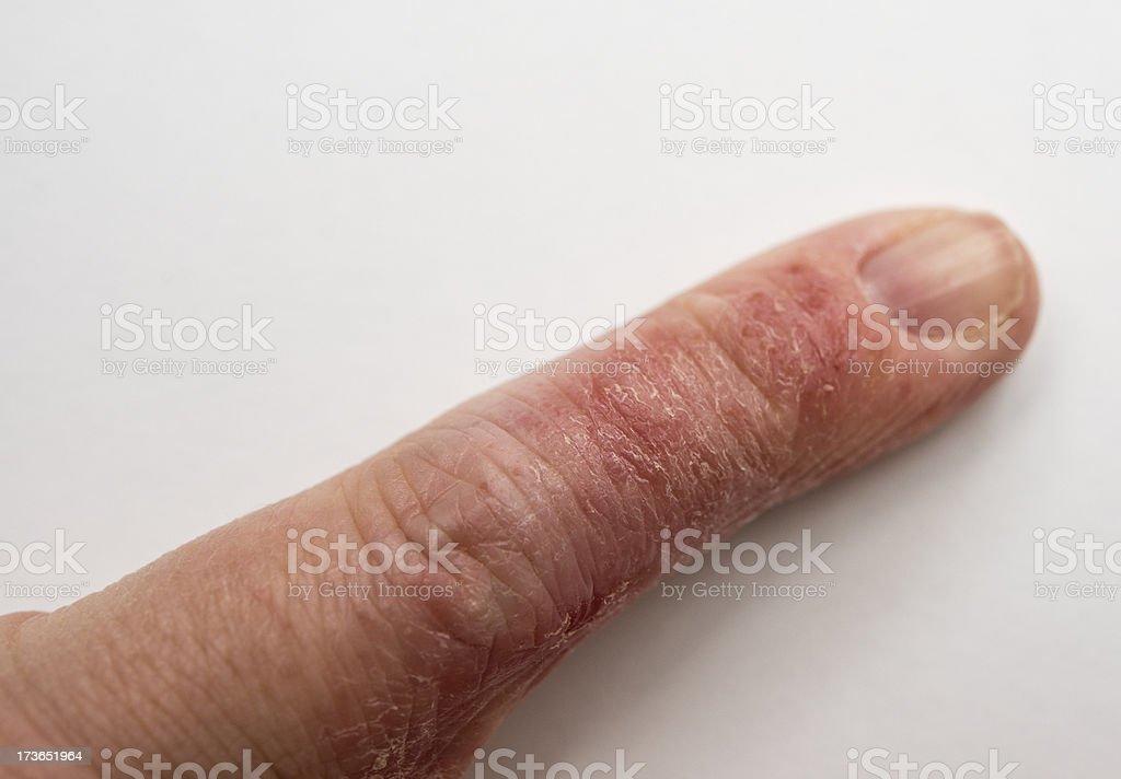 Dry Cracked Skin Condition, Eczema stock photo