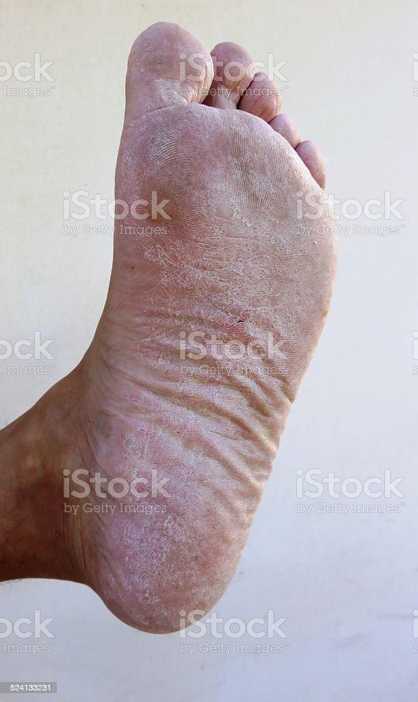 Dry feet stock photo