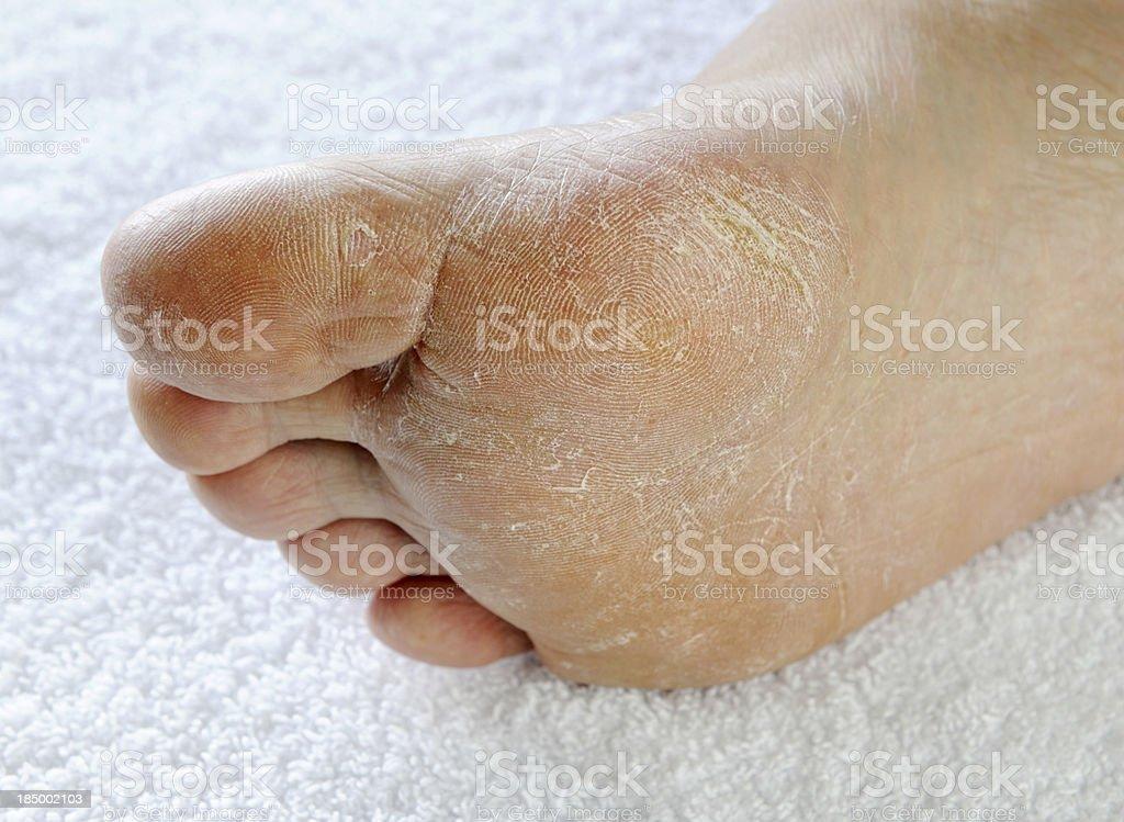 Dry rough foot (XXXL) royalty-free stock photo