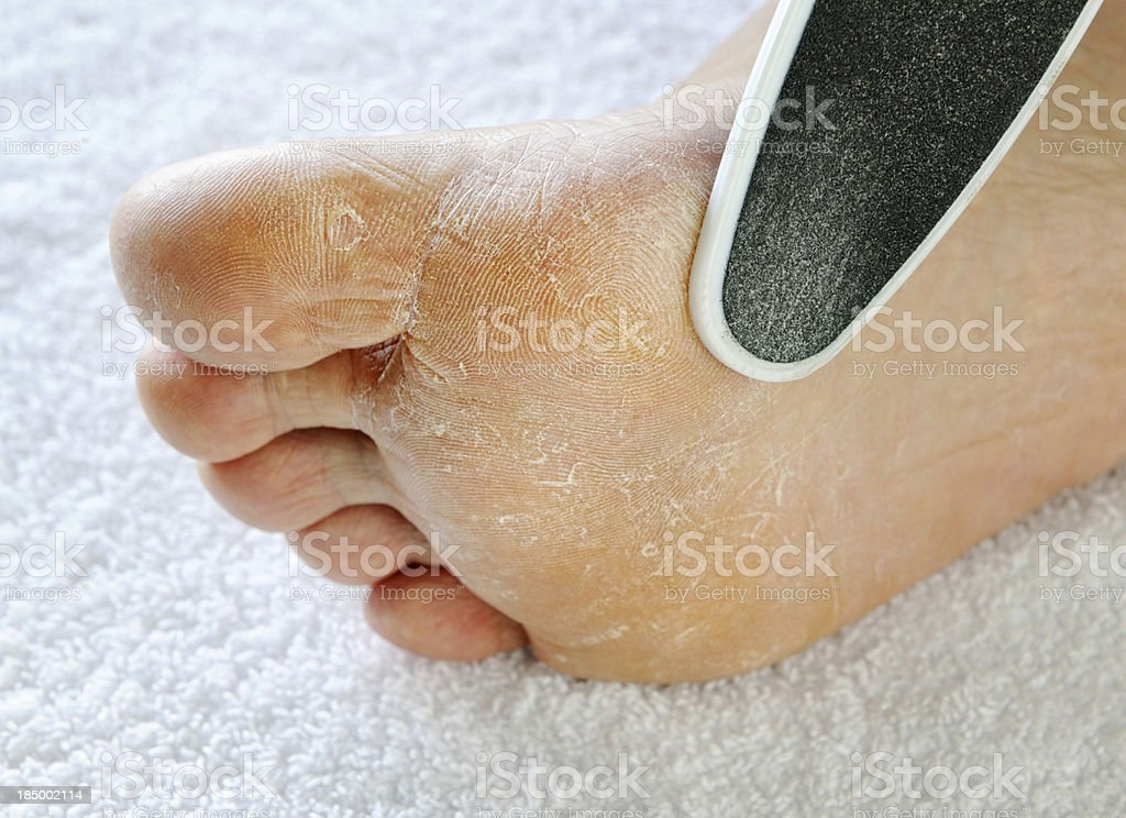 Dry rough foot with file (XXXL) stock photo