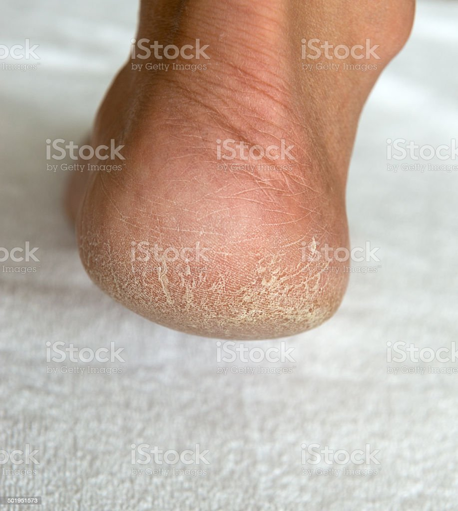 Dry rough heel / foot stock photo