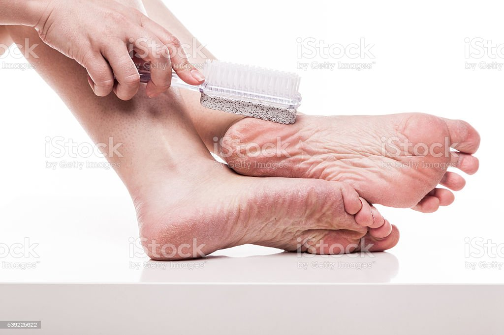 dry skin on the well-groomed feet stock photo