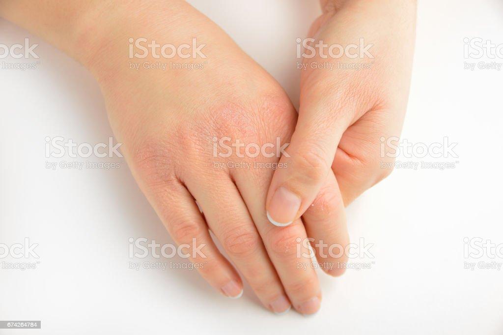 dryness in my hands skin stock photo