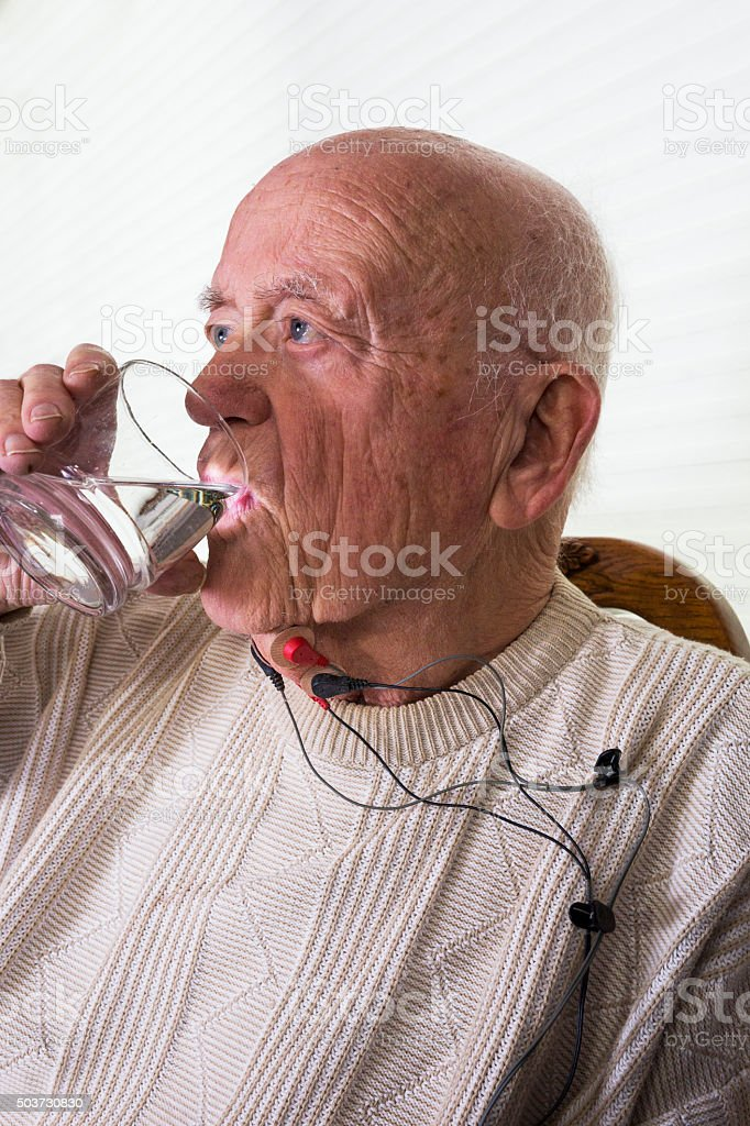 Dysphagia swallowing therapy with NMES stock photo