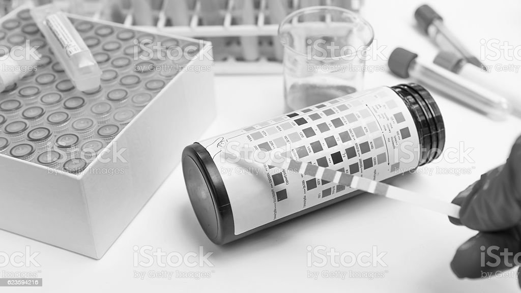 eagent Strip for Urinalysis , Routine Urinalysis, check-up analy stock photo