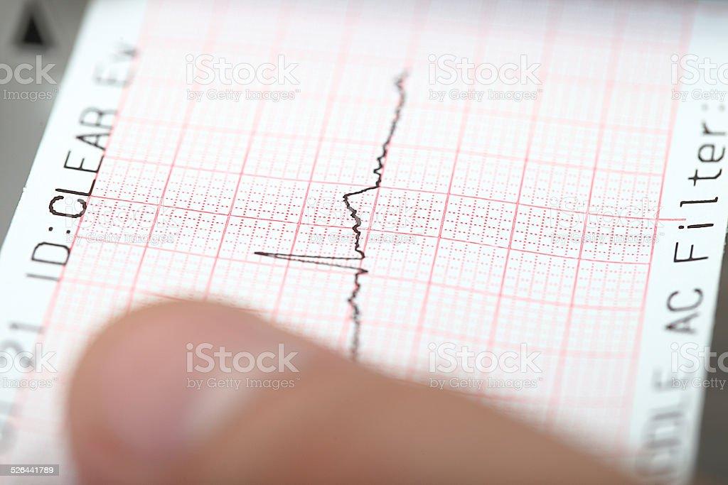 Earthquake on a seismograph. stock photo