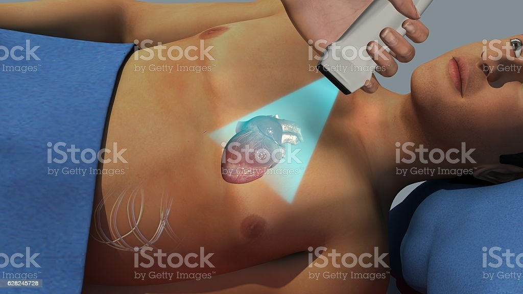Echocardiogram stock photo