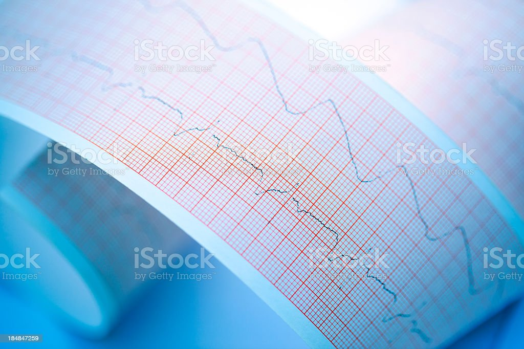 Echocardiogram printout of a hearts beating patterns  royalty-free stock photo