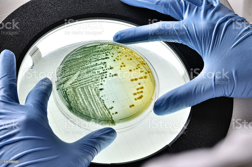 E.coli bacteria growing in dish inspected stock photo