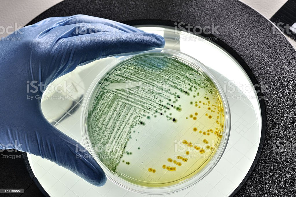E.coli bacteria growing in dish stock photo