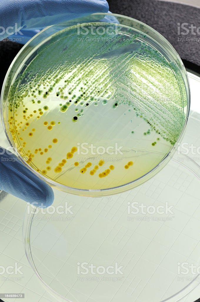 E.coli bacteria growing in dish royalty-free stock photo