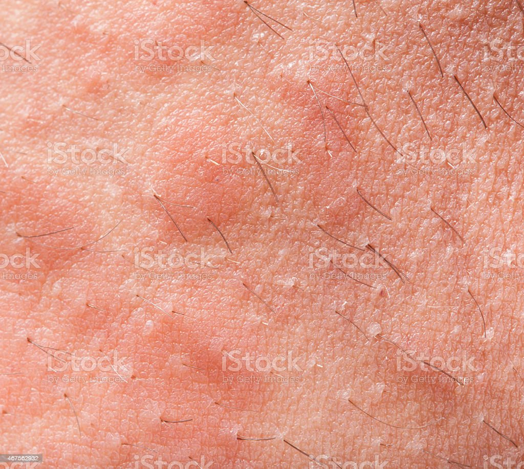 Eczema atopic dermatitis stock photo