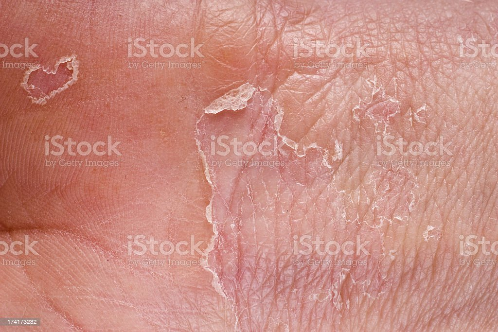 eczema closeup royalty-free stock photo