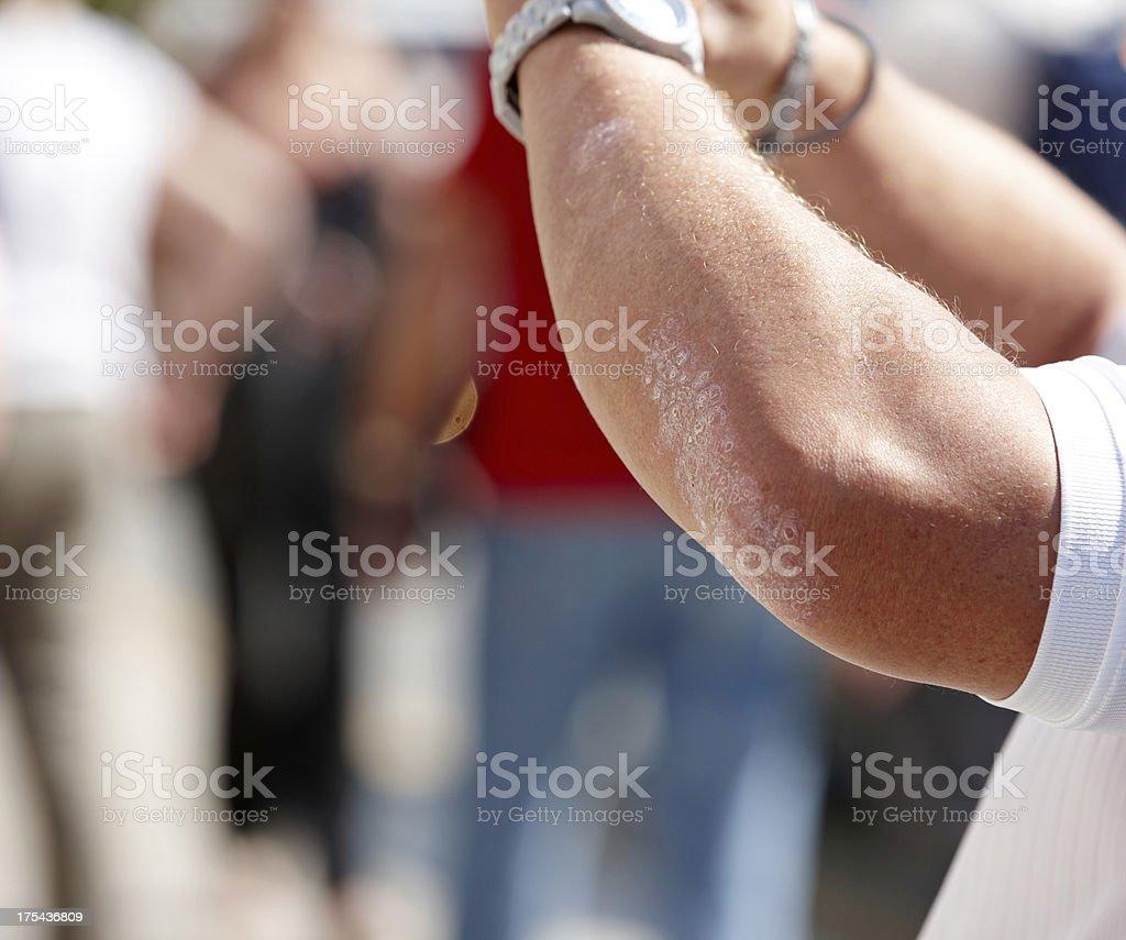 Eczema rash on man elbow royalty-free stock photo