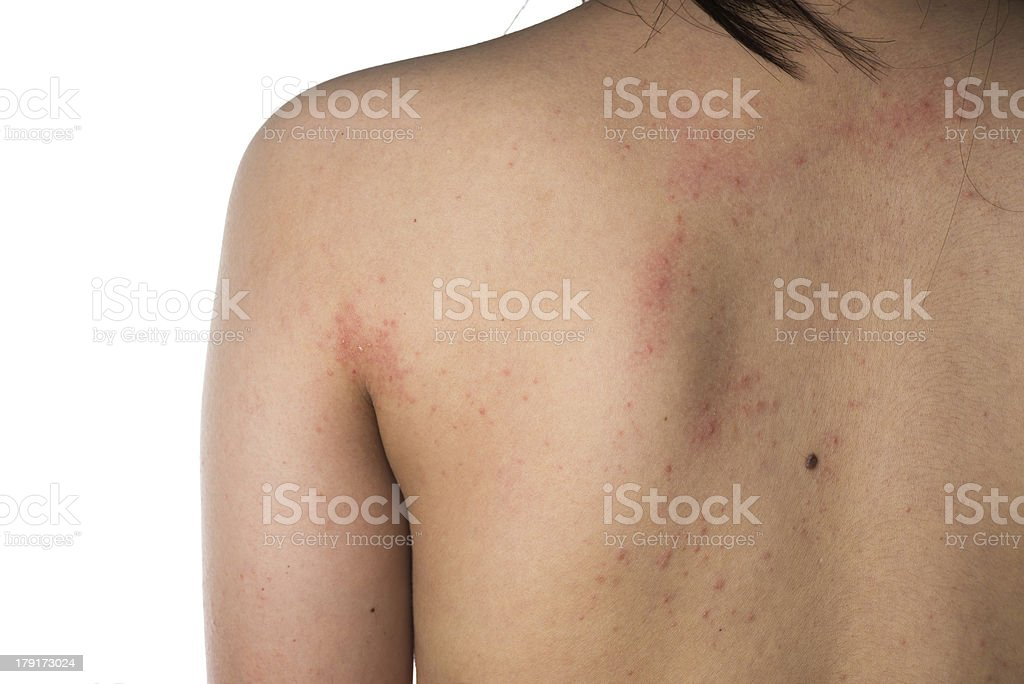 eczema skin of human back detail texture stock photo