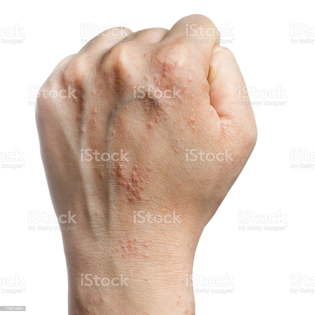 eczema skin on hand stock photo