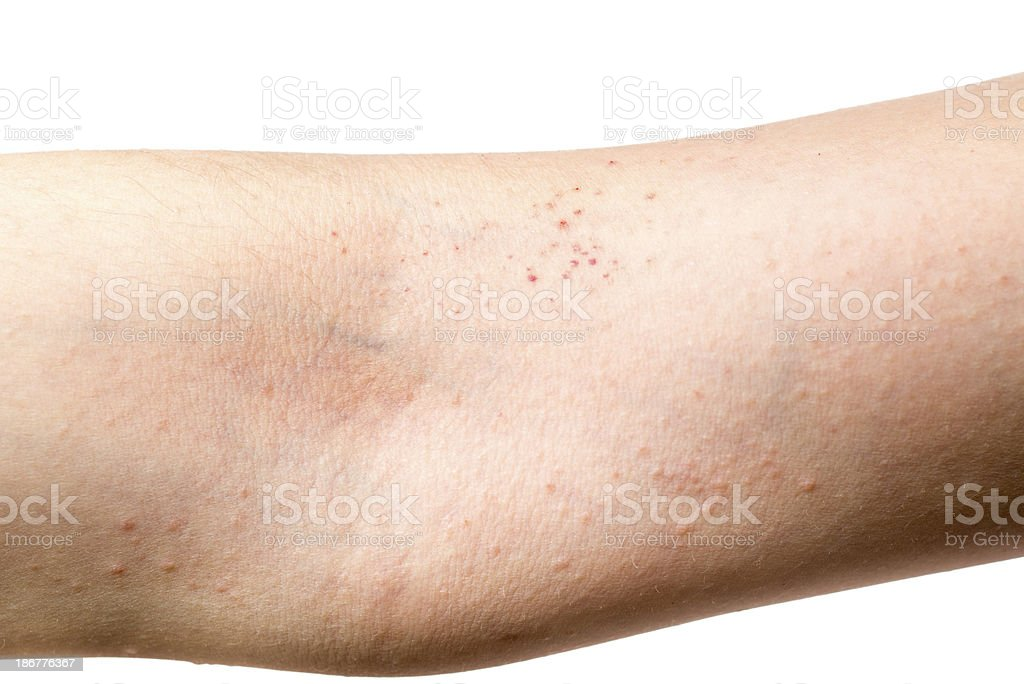 eczema skin on hand royalty-free stock photo
