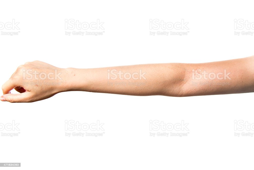 eczema skin on hand royalty-free stock photo