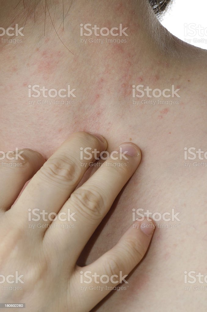 eczema skin on neck royalty-free stock photo