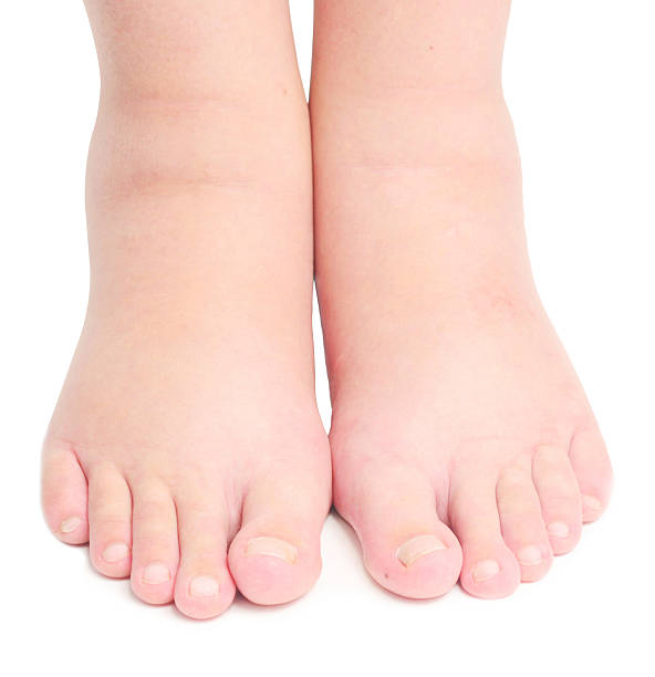 edema pictures, images and stock photos - istock, Skeleton