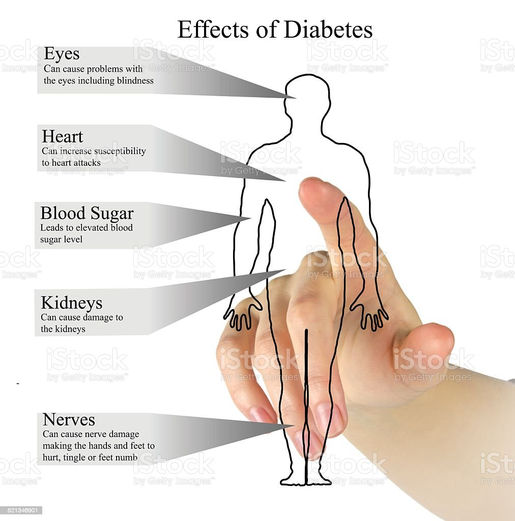 Effects of diabetes stock photo