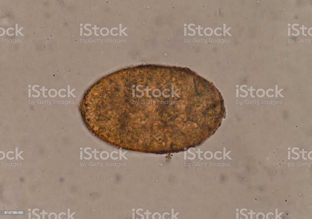 Egg of parasite in stool exam. stock photo