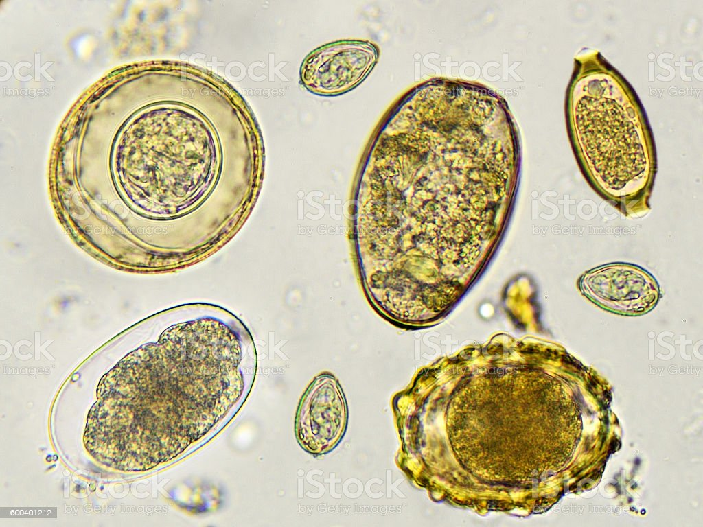 Eggs of helminth stock photo