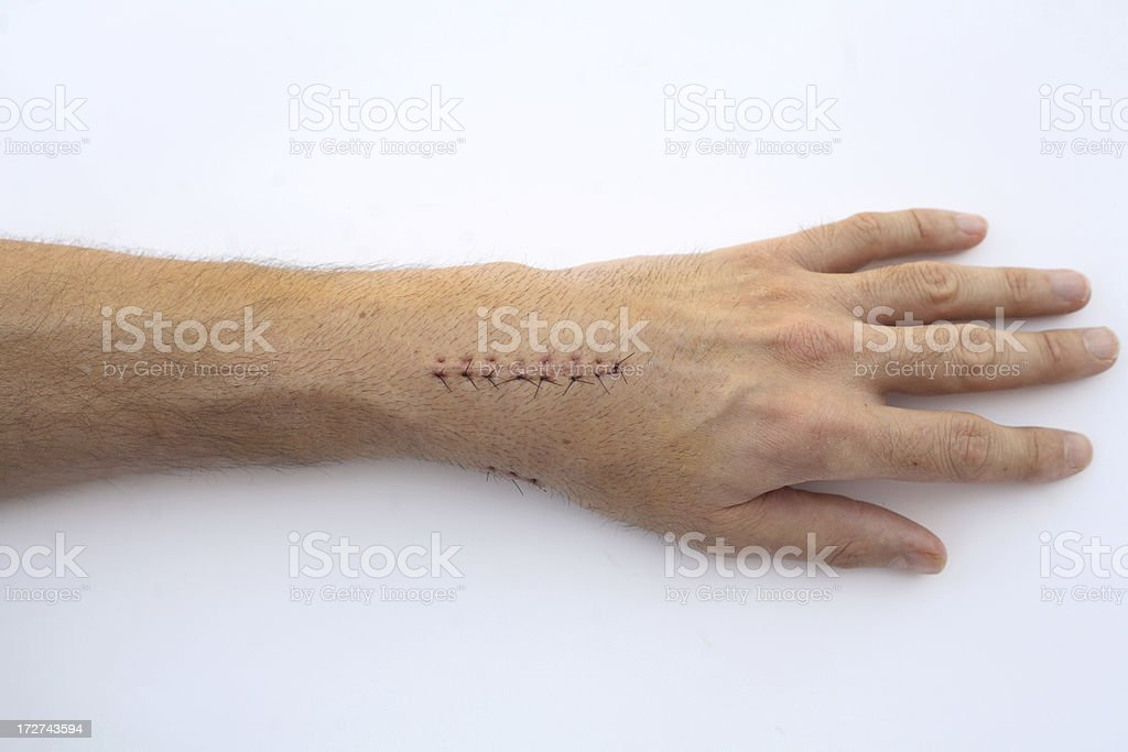 Eight stitches royalty-free stock photo