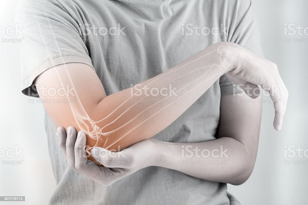 elbow bones injury stock photo