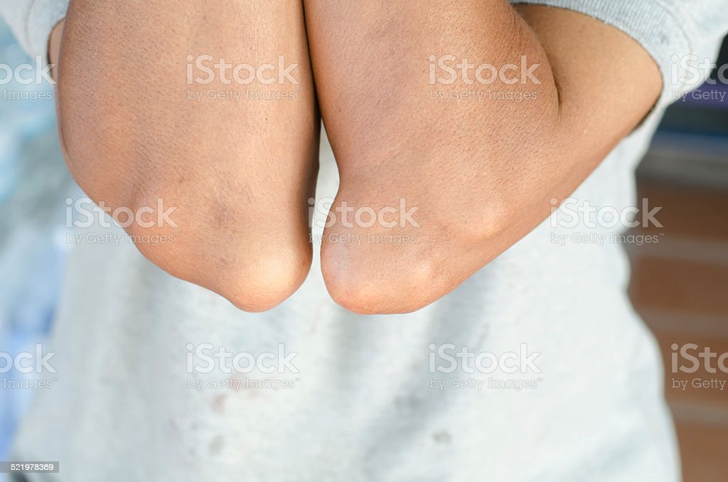 elbow of patients with gout. stock photo