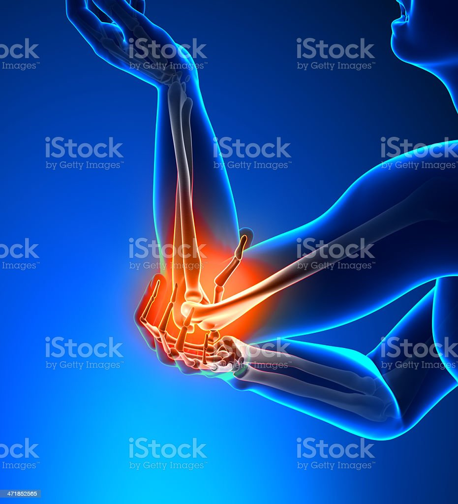 Elbow Pain Male - Side view stock photo