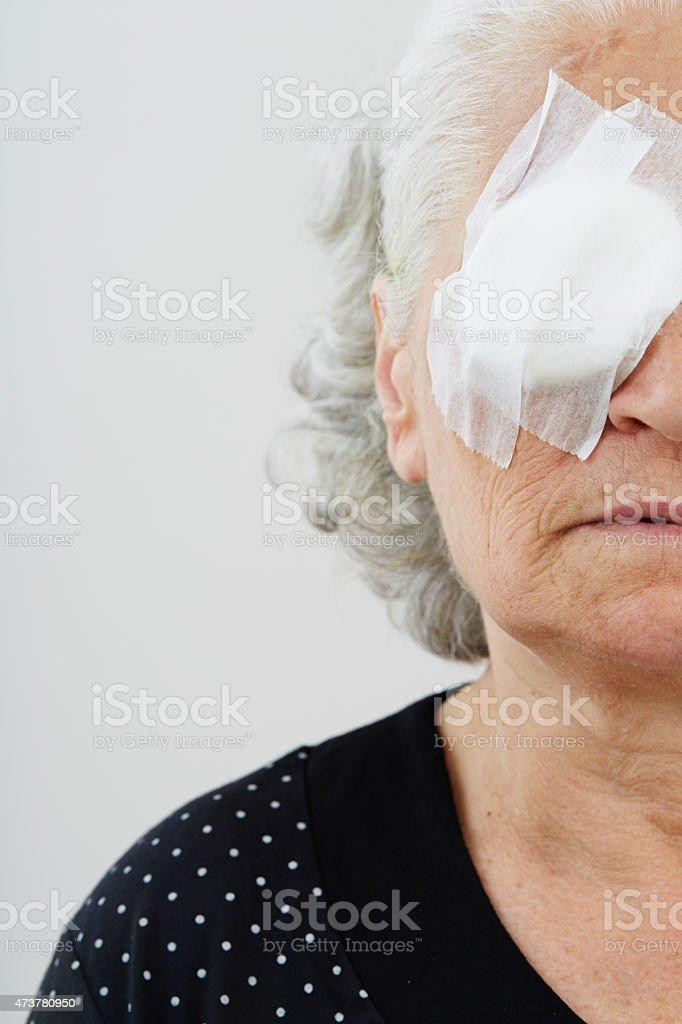 Elder female with eye patch stock photo